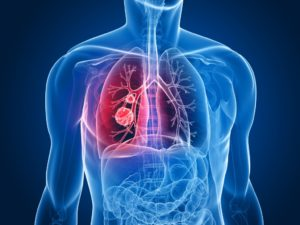 Best Mesothelioma Lawyers